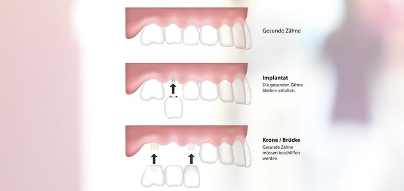 zahnarzt-Implantate