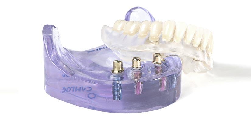 zahnarzt-leistungen-Festsitzender-Zahnersatz-anker