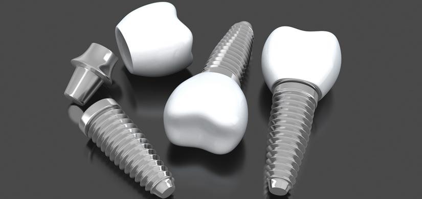 zahnarzt-leistungen-Zahnimplantate