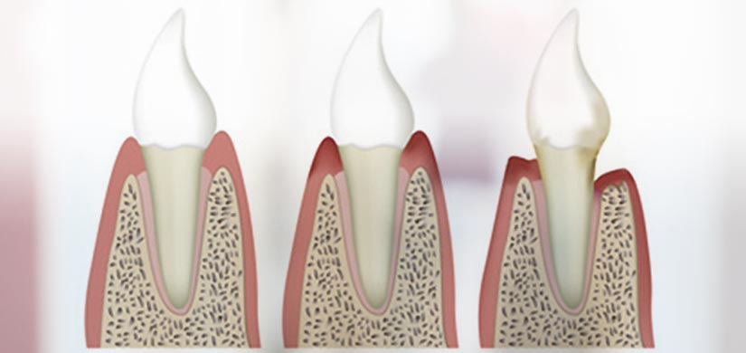 zahnarzt-leistungen-parodontitis