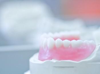 zahnarzt-labor-zahn-abdruck