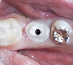 zahnarzt-vorher-nachherDSC03074-3