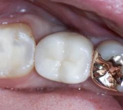 zahnarzt-vorher-nachherDSC03075-4