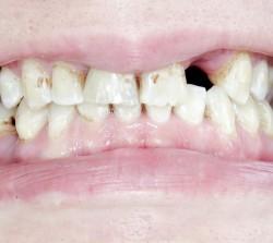 zahnarzt-vorher-nachherVorherI-15