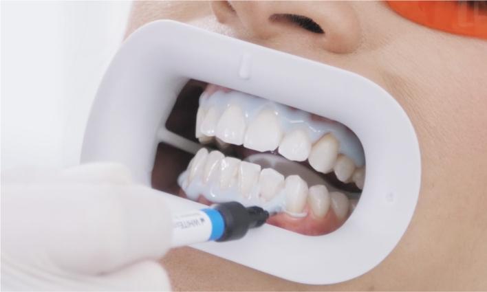 Zahnfarbe natürliche contrensubshea